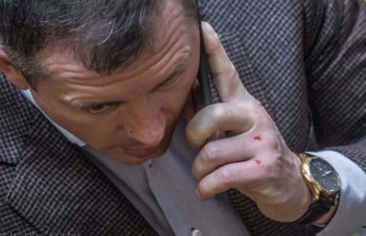 """Молоток """"засвітився"""" у Раді: Збиті кулаки і годинник за 21 тисячу """"баксів"""" (ФОТОФАКТ)"""