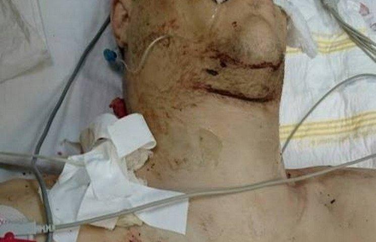 У Дніпропетровську рятують пораненого осколком в шию бійця