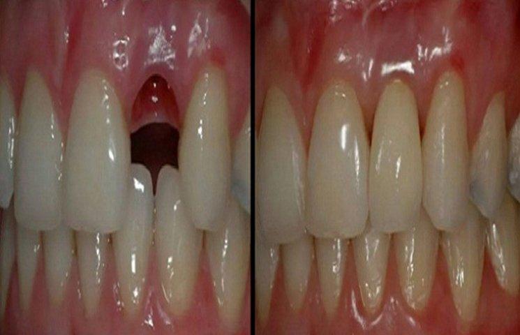 Відтепер за 9 тижнів прямісінько у роті можна виростити нові зуби