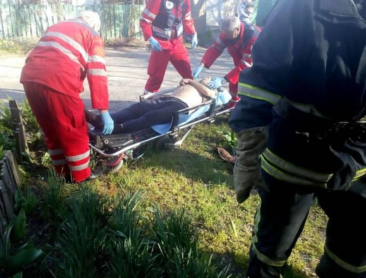 Прикарпатські рятувальники врятували з вогню 70-річного пенсіонера