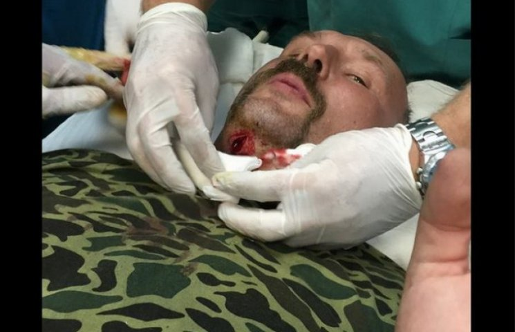 """Дніпропетровський хірург був поранений на передовій, """"бо не впав"""""""