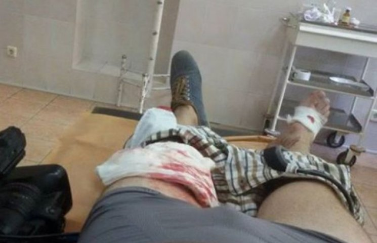 """Під стінами Ради поранений військовий журналіст, який пройшов """"гарячі точки"""""""