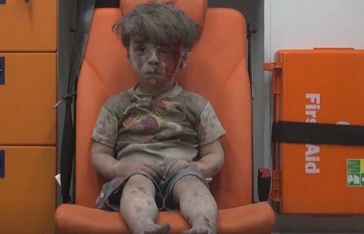 """Підлеглим Шойгу не подобається """"пропаганда"""" про розбомблених ними сирійських дітей"""