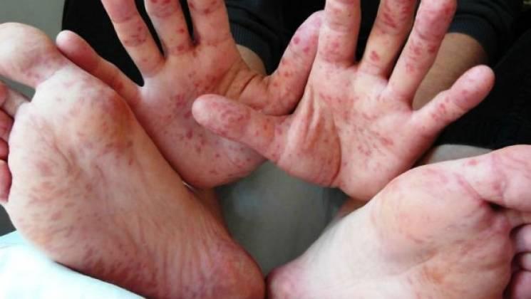 За тиждень у столичні інфекційні лікарні госпіталізовані десятки дітей із кором