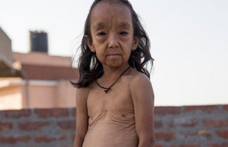 Как Бенджамин Баттон: в Индии двое детей из-за болезни выглядят как старики