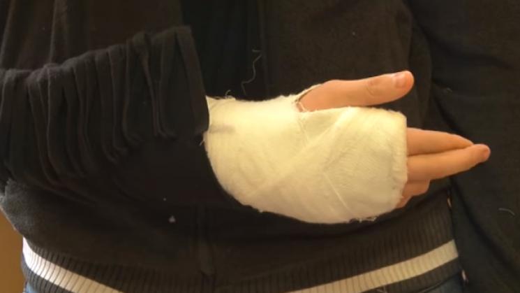 Мер Кропивницького стурбований підлітковими бійками в місті