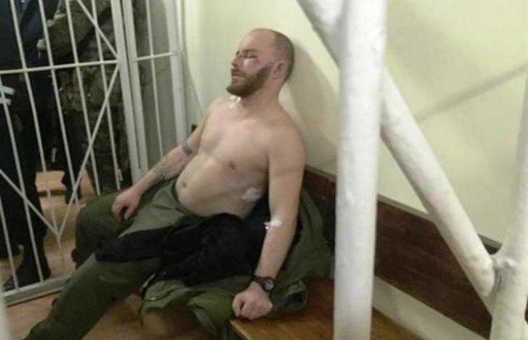"""В Ужгороді починається суд над """"правосекторівцями"""" - підсудні виглядають побитими"""