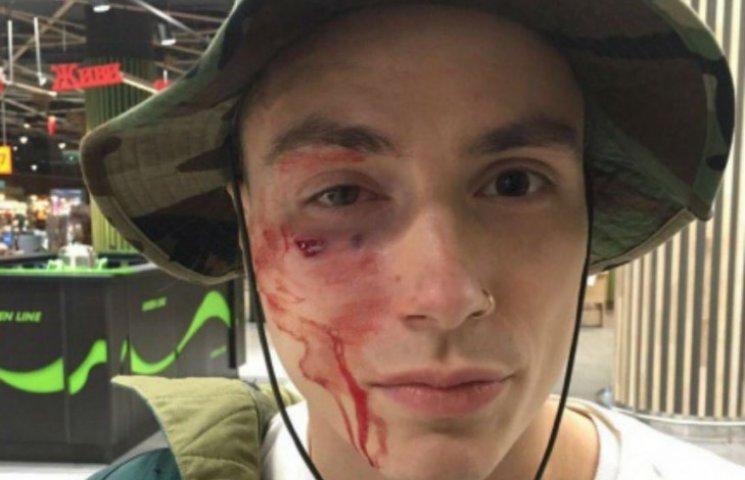 У Києві жорстоко побили за одяг учасника групи Quest Pistols (ФОТО)