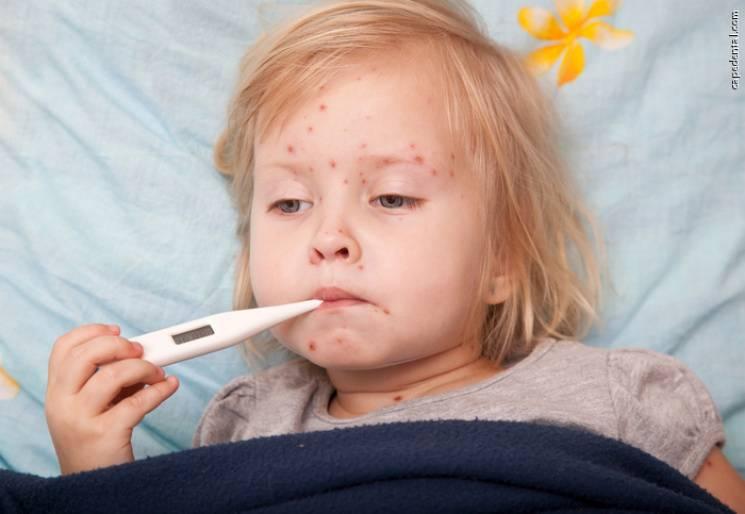 Посадовці запевняють, що епідситуація щодо захворюваності на кір у Кропивницькому спокійна