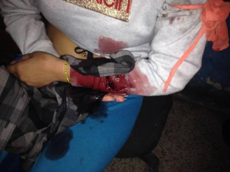 Протести у Венесуелі: Нацгвардія відкрила вогонь, є загиблі (ФОТО, ОНОВЛЕНО)