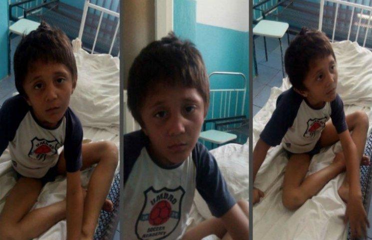 На Полтавщині знайшли 6-річну дитину-мауглі