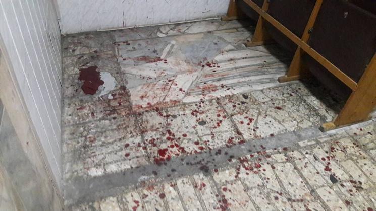 ВКиеве «копы» избили бойцов АТО