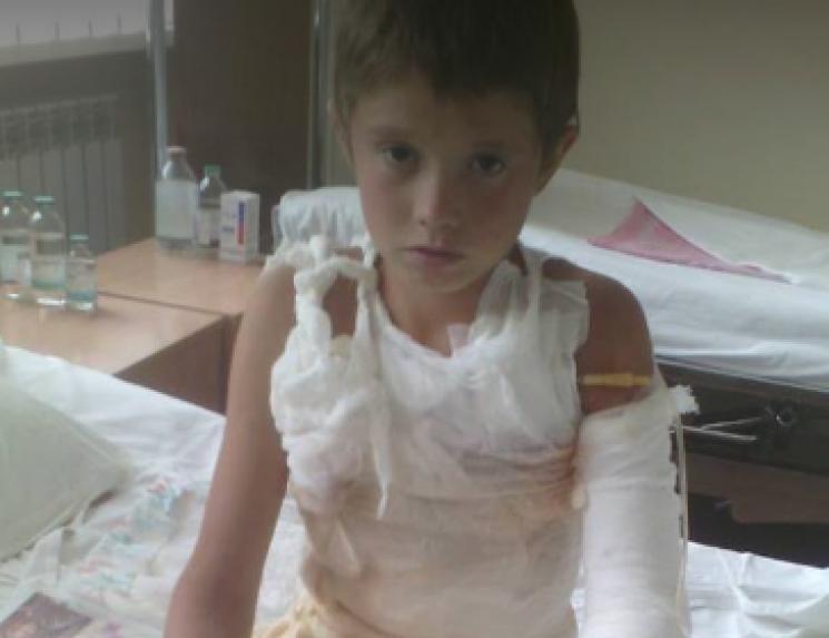 Хлопчику з Кропивниччини необхідна допомога на лікування тяжких опіків