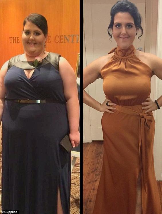 Аби врятувати сестру, 25-річна австралійка схудла на 80 кг