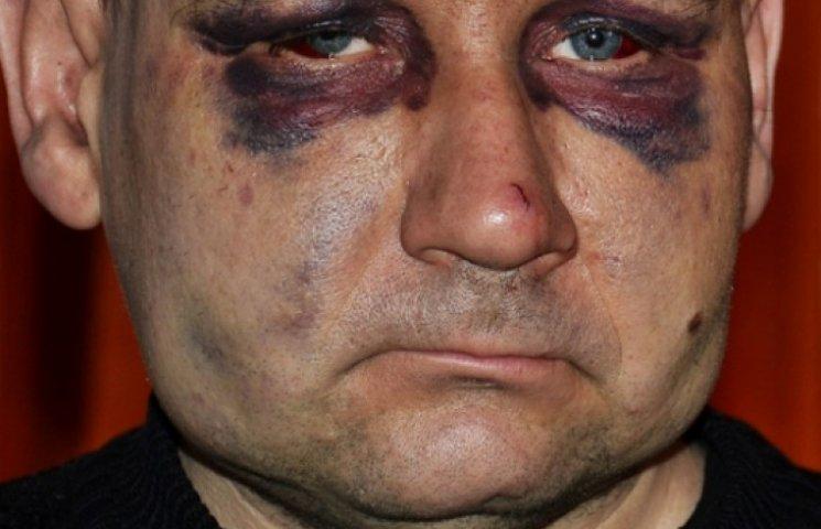 Донецкий шахтер рассказал, как его пытали в плену боевики