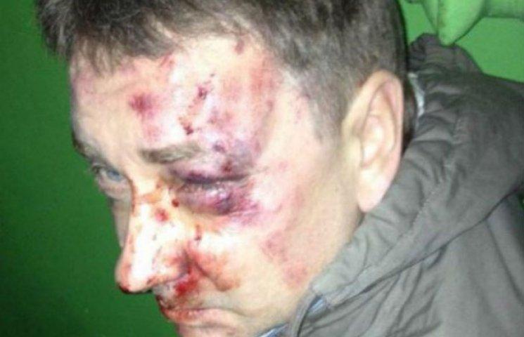 Прокуратура визначилась із підозрюванним у побитті редактора Положія