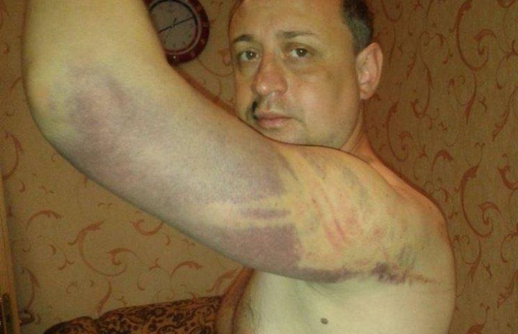 Пастор з Донецька про катування бойовиків: коли мене били, я молився (ФОТО)