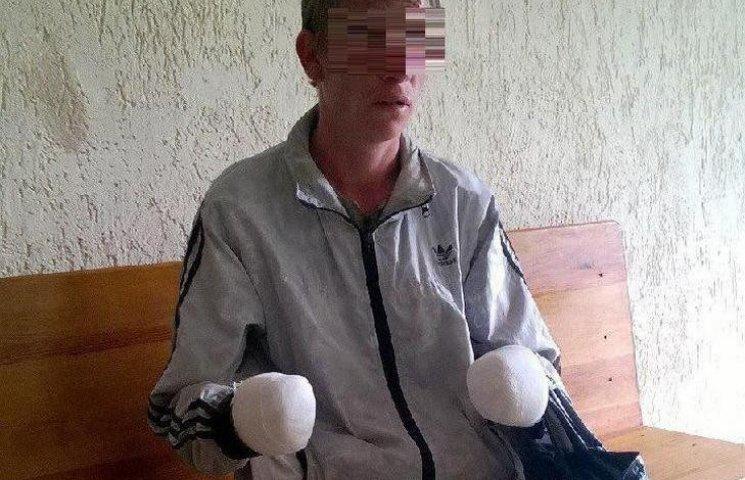 Псевдо-боєць АТО жебракував та прикидувався безруким (ФОТО)