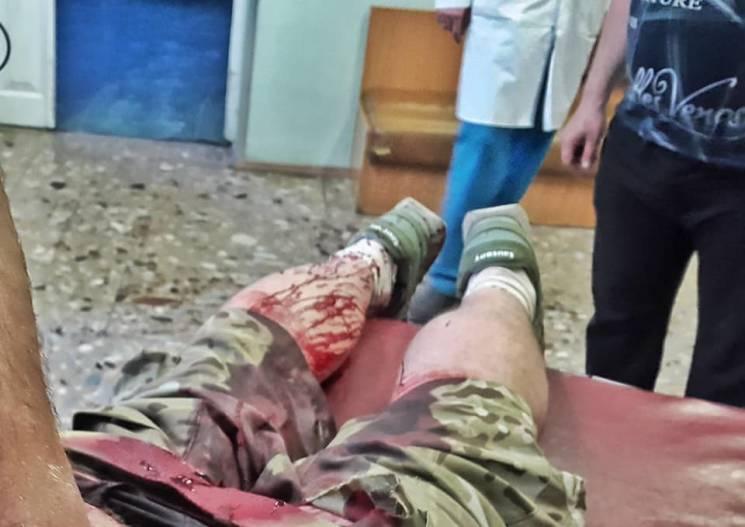 УКиєві четверо нападників всадили ніж успину «кіборгу»