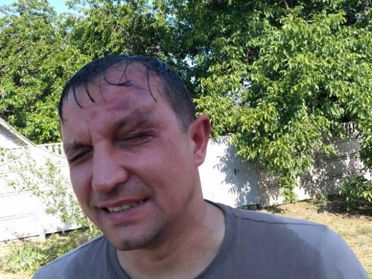 У Кривому Розі невідомі скоїли напад на депутата міськради