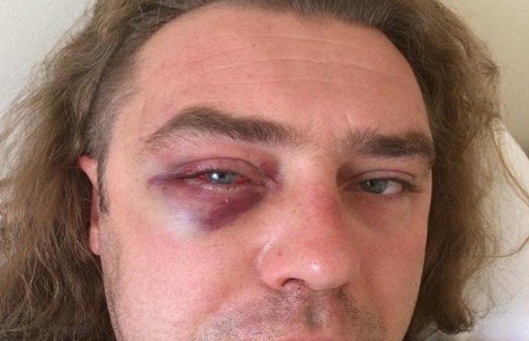 """""""Свободовец"""" Мирошниченко показал разбитое лицо и озвучил свою версию семейного скандала"""