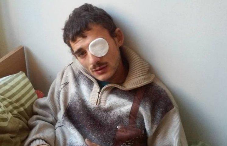 В Ужгороді чоловік заради розваги вистрелив рому в око