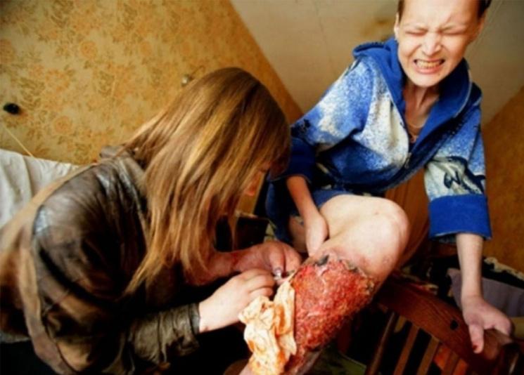 """У Вінниці три сотні опіумних наркоманів хочуть """"зіскочити з голки"""""""
