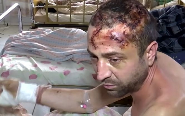 Житомирянин, який катував брата, виявився підполковником поліції, – ЗМІ