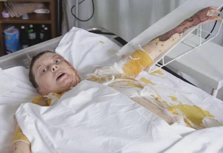 Активістка Катерина Гандзюк померла…