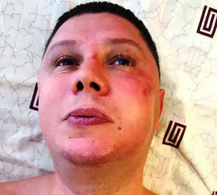 У Хмельницькому побили новоспеченого гол…