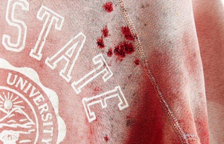 Urban Outfitters пиарится на кровавой тр…
