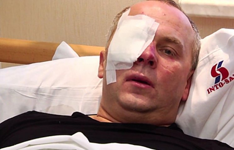 Шуфрич заявив, що перед тим як «люструвати», його доведеться вбити