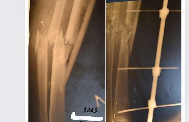 Дніпропетровські лікарі врятували від ампутації ноги молодого бійця