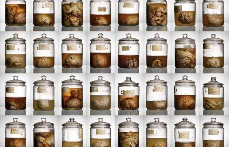 Нацистський невролог часів Другої світової консервував мозок людей