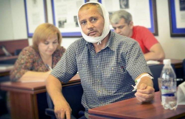 Побитий жмеринський депутат прийшов на сесію зі зламаною щелепою, катетером та однопартійцями
