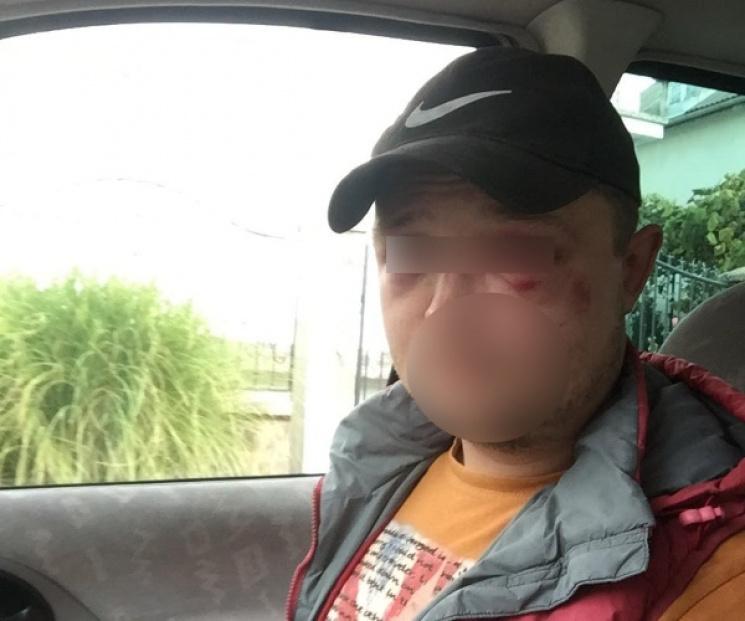 ВЗападной Украине здешние граждане избили туристов, собирающих грибы